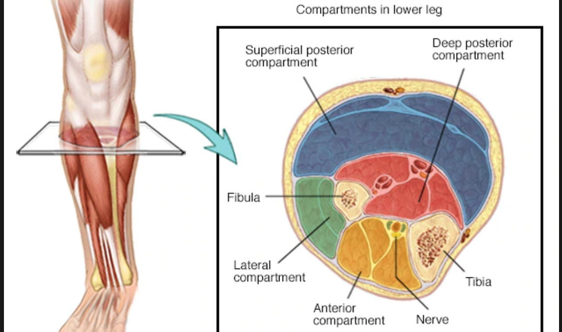 A Diagnosis – Compartment Syndrome